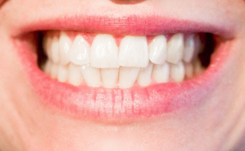 Obecna technika używana w salonach stomatologii estetycznej być może spowodować, że odbierzemy prześliczny uśmieszek.